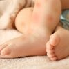 Protección de insectos para bebés y niños